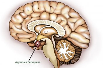 Аденома гипофиза: причины, лечение, симптомы у женщин и мужчин