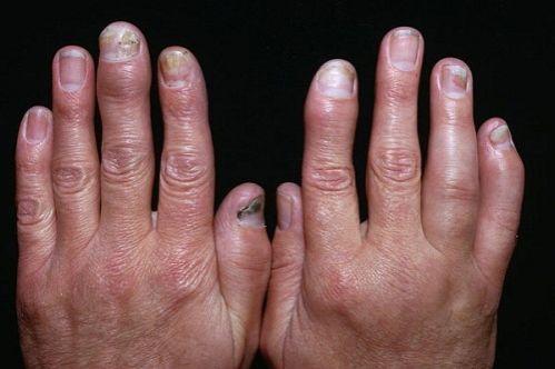 Лечение псориаза стоп и кистей рук