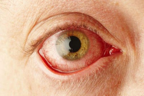 Конъюнктивит глаз у беременных 93