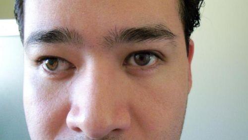 Ухудшение зрения при синдроме сухого глаза