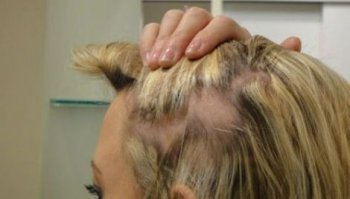 Алопеция - лечение, причины, симптомы, классификация