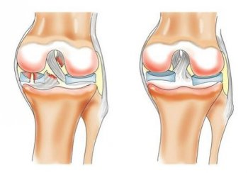 Разрыв мениска коленного сустава лечение