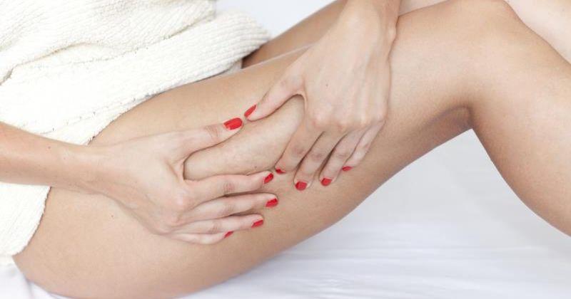Как бороться с целлюлитом во время беременности