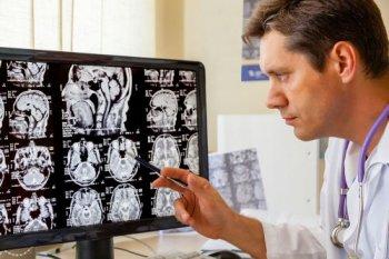 Признаки энцефалопатии головного мозга у взрослых
