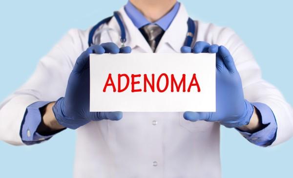 Дискомфорт в промежности аденома