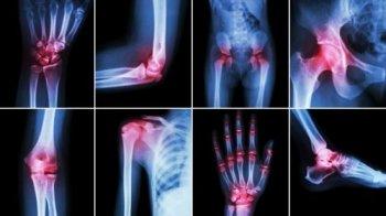 Симптомы и лечение полиартрита