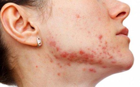 Золотистый стафилококк в носу симптомы