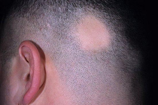 Очаговая алопеция у мужчин на голове лечение — Волосы