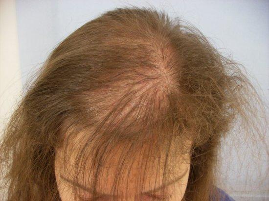 Особенности диффузного выпадения волос