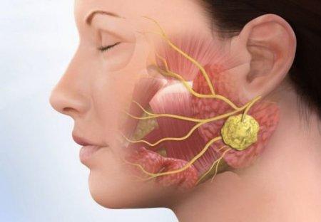 Лечение полиморфной аденомы слюнных желез