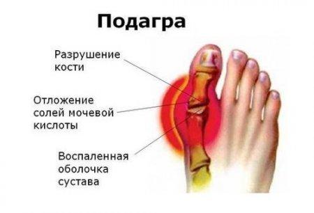 Болит в области пальцев на ноге