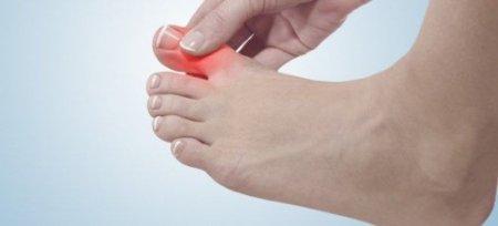 Болит большой ноготь на ноге