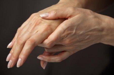 Онемение пальцев рук на левой или правой руке: причины. Как лечить потерю чувствительности?