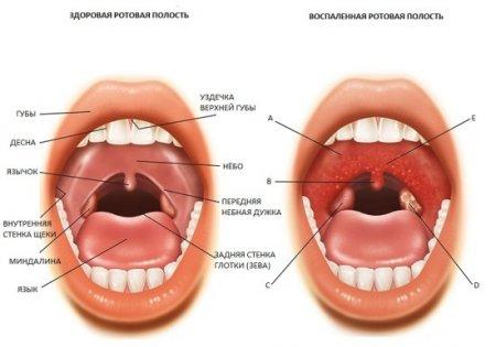 Лечение ангины амоксиклав