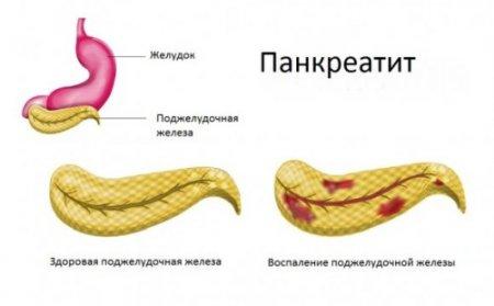 Дюфалак можно ли при панкреатите есть