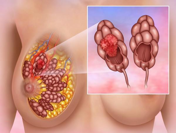 Протоковый рак молочной железы симптомы прогноз лечение