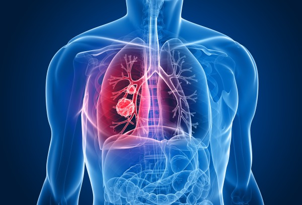 Болезнь рак легких лечение