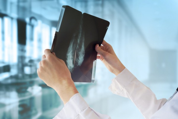 Лечение рака молочной железы на ранних стадиях