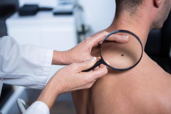 Общее состояние больного при меланоме