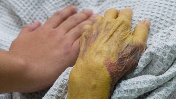 Лечение синдрома жильбера