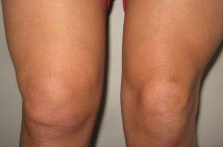 Изображение - Отек коленного сустава симптомы 1521104878_1477037415_59