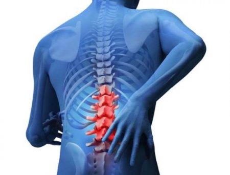 Отек костного мозга позвоночника - что это такое и как лечить