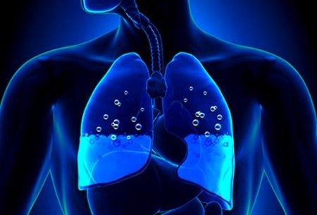 Отек легких – симптомы, причины и лечение отека легких. Неотложная помощь при отеке легких — Айболит