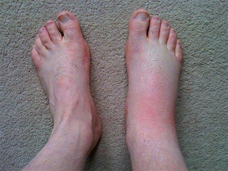 Отек ноги после укуса мошки: как снять и что делать