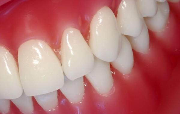Метронидазол в стоматологии как применять