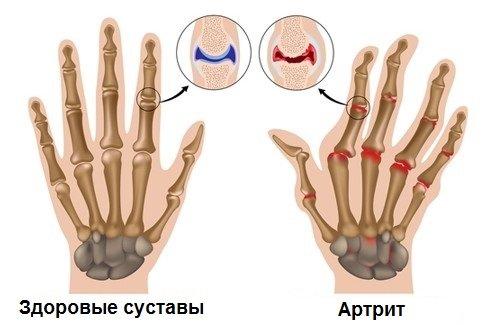 Фолиевая кислота и Метотрексат при ревматоидном артрите