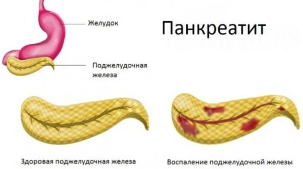Де нол сколько можно принимать при панкреатите