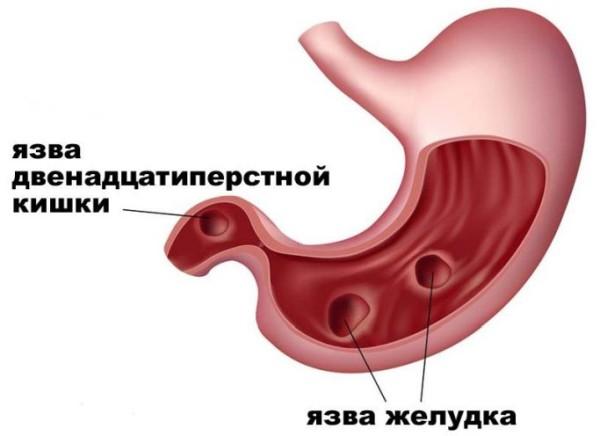 Как вылечить язву желудка денолом