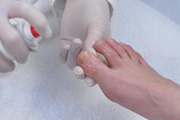 Левомеколь мазь помогает от грибка ногтей