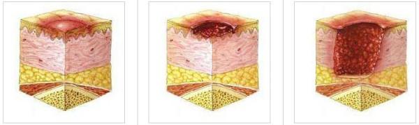 Можно ли лечить пролежни левомеколем