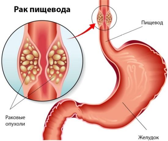 Лечение рака прополисом: рецепт настойки и что еще нужно знать