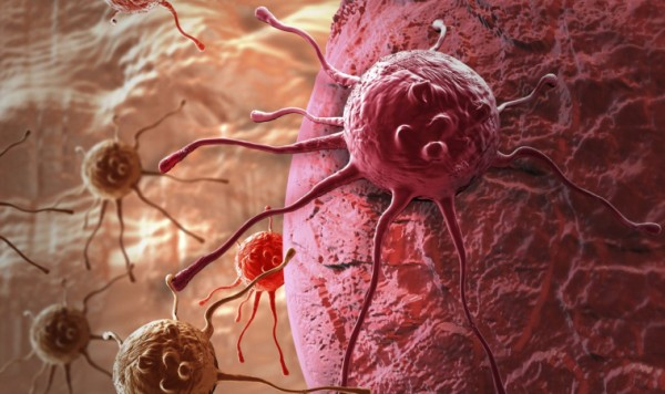 Прополис в лечении рака ротоглотки