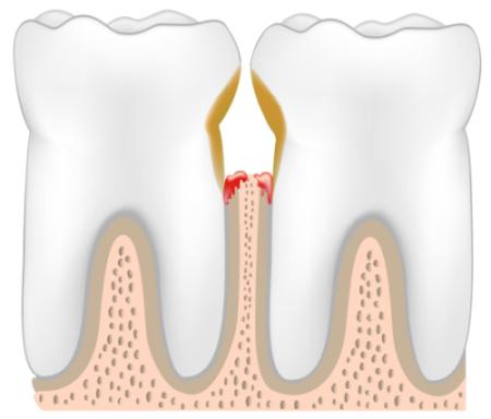 Настойка прополиса в стоматологии